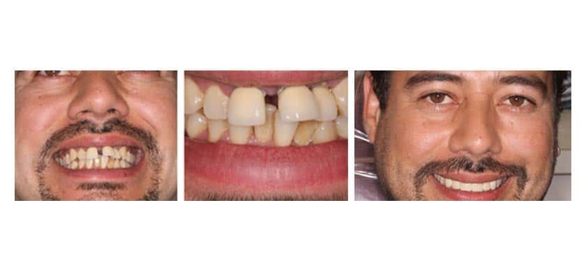 nyc smile makeover