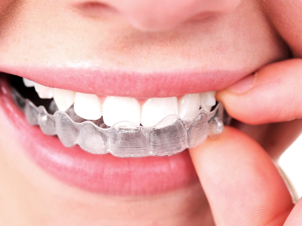 upper east side dentistry manhattan invisalign