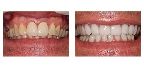 Veneers Before and After from Dr. Lattinelli