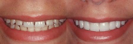 upper east side dental veneers manhattan best dentist
