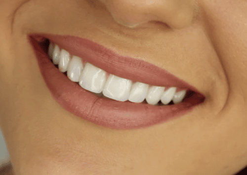 Manhattan Veneers from Dr Lattinelli