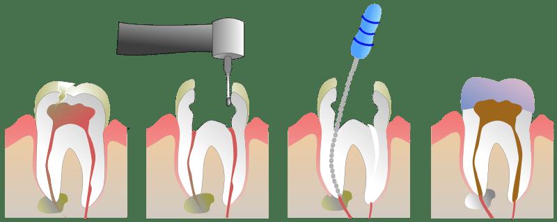 Upper East Side Cosmetic Dentistry