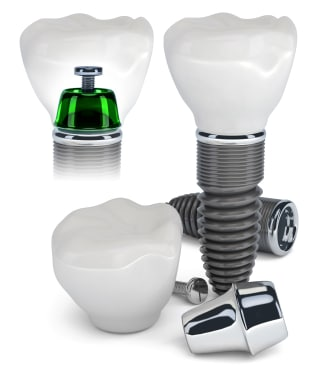 Upper East dental implants