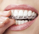 Upper East Side Invisalign