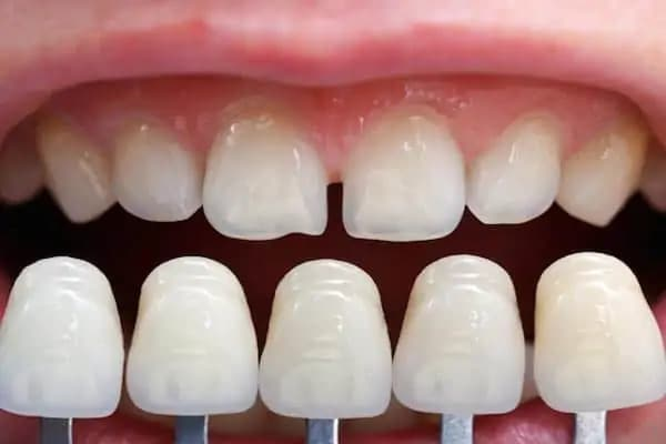 manhattan cosmetic dentistry