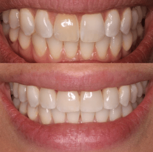 Before and After Porcelain Veneers Upper East Side