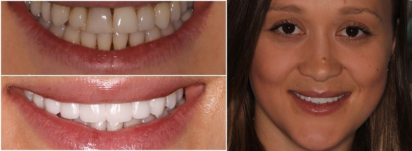 Before And After Collage of Veneers
