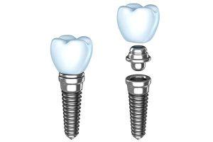 upper east side dental implants