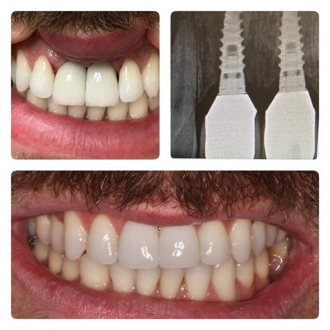Dental Implants from Dr Lattinelli
