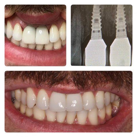 Dental Implants from Dr Lattinelli