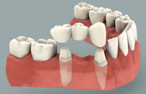 upper east side dental implants