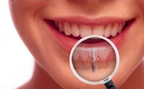 Midtown NY Dental Implants