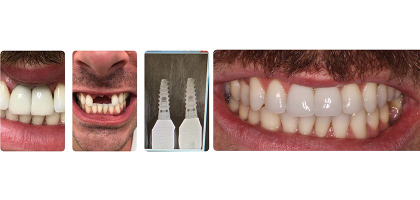 manhattan dental implants
