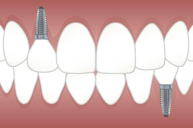 manhattan cosmetic dentistry upper easy side
