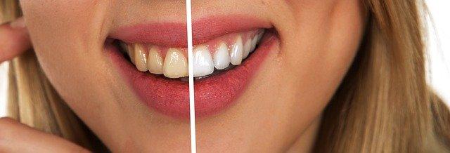 upper east side dental implants manhattan